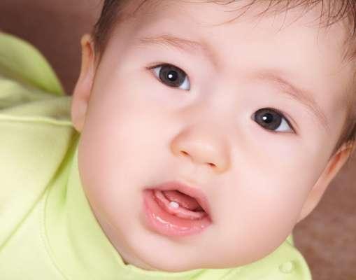 Doenças na infância podem causar deformação naface